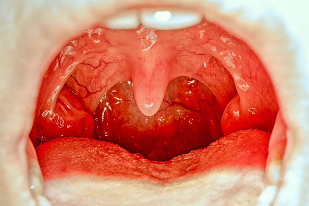 weißer Belag auf der Zunge und Flecken im Rachen
