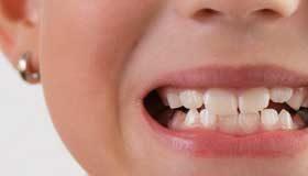 Lippenbändchen durchtrennen beim Kind