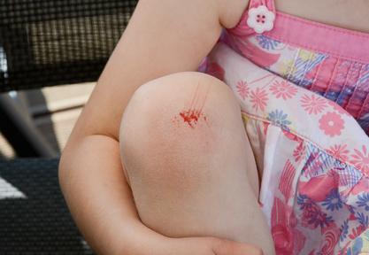 Kind mit aufgeschürftem Knie