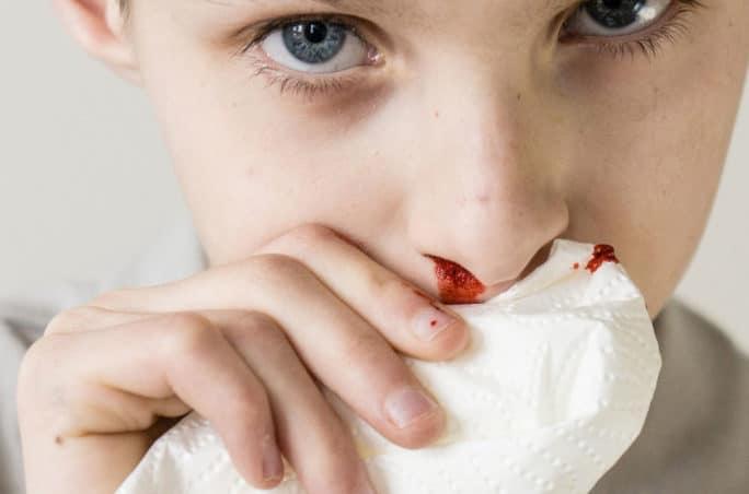 Nasenbluten beim Kind
