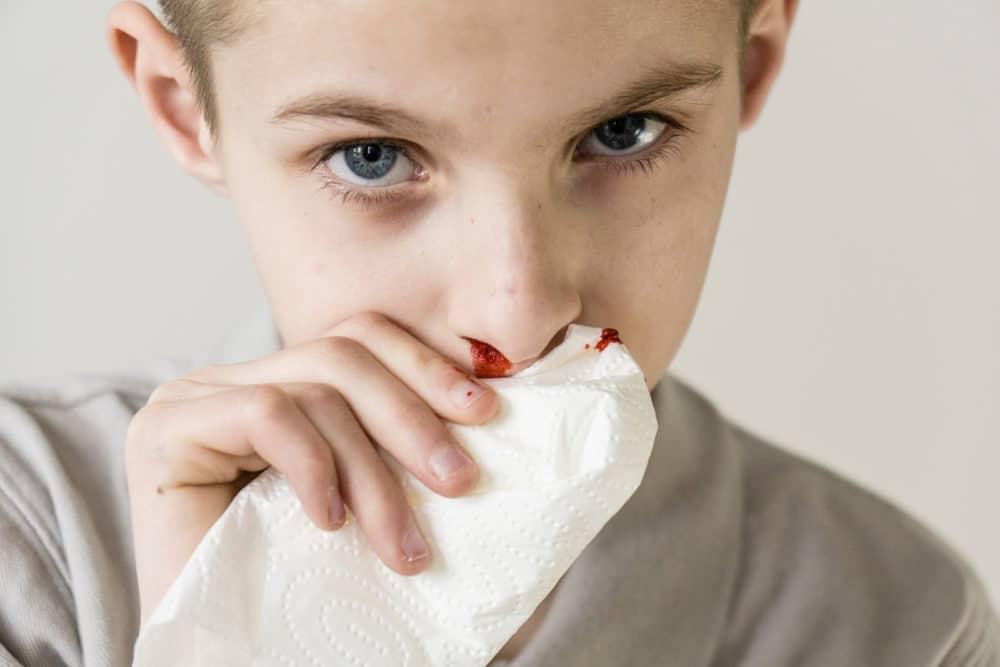 Nasenbluten beim Kind stoppen