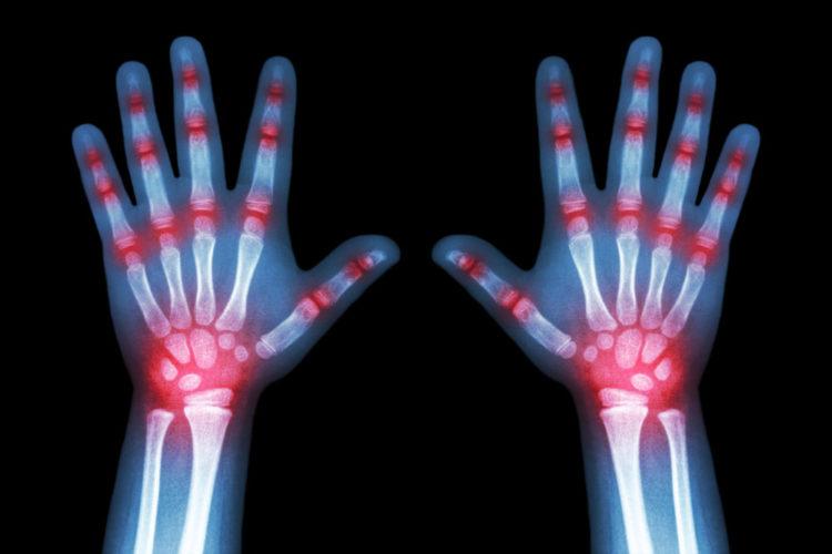 rheumatoide arthritis bei kindern