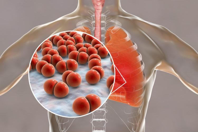 Pneumococcal pneumonia, medical concept. 3D illustration showing bacteria Streptococcus pneumoniae in der lUnge - Copyright: Tyrannosaurus bigstockphoto