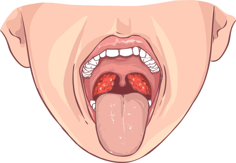 rote Flecken im Rachen