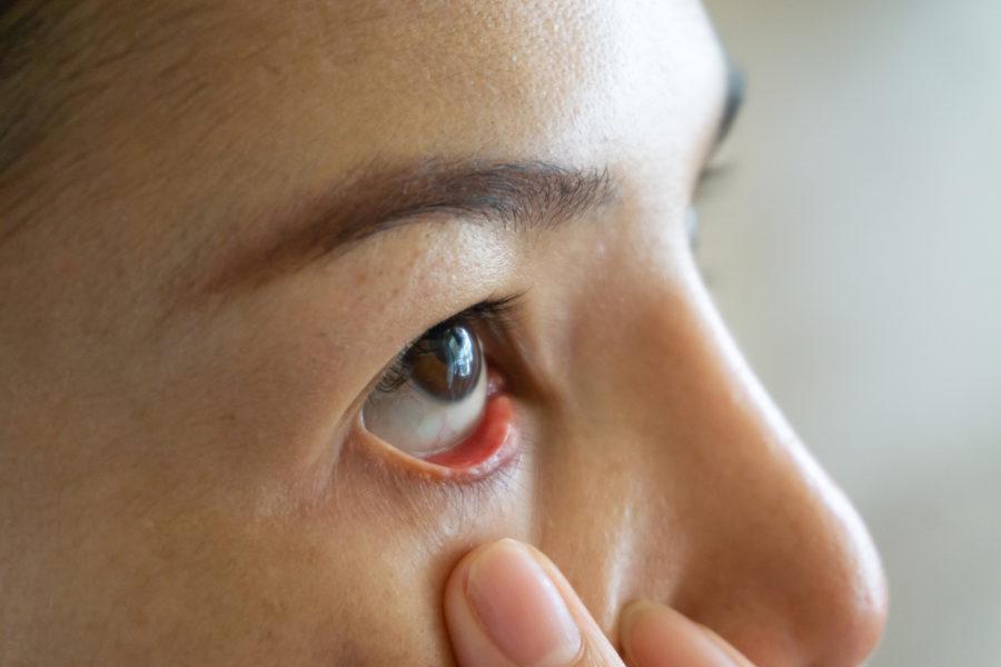 Augentrübung beim Kind