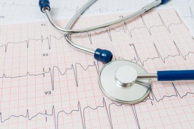 EKG / ECG Copyright: vchal bigstockphoto